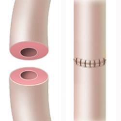 vasectomy-reversal-success