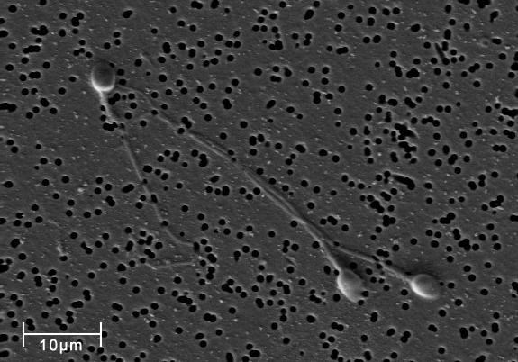 Spermatozoa-human-3140x